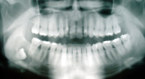 wisdom tooth xray. (PD, released by Pidalka44/Commons.wikimedia.org)